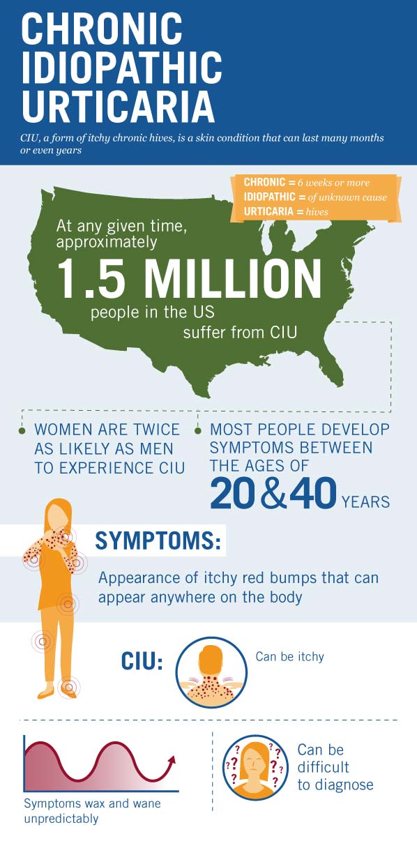 CIU & You: Support for Those with CIU, a Form of Chronic Hives